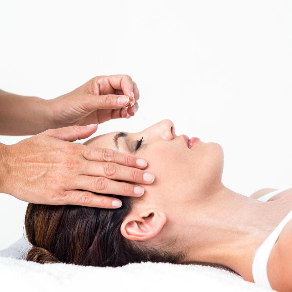 akupunktura-banja-luka-arni-centar-za-kicmu