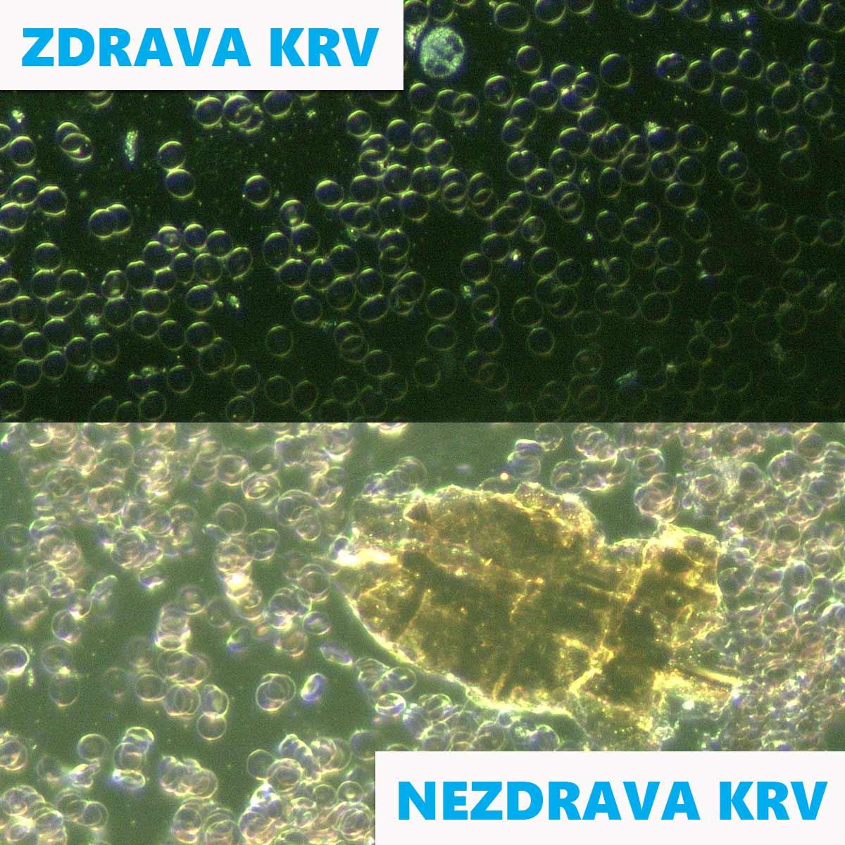 DARKFIELD-ANALIZA-ZIVE-KAPI-KRVI-