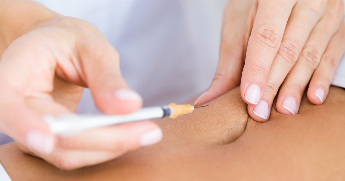 lipoliza-tretman-banja-luka