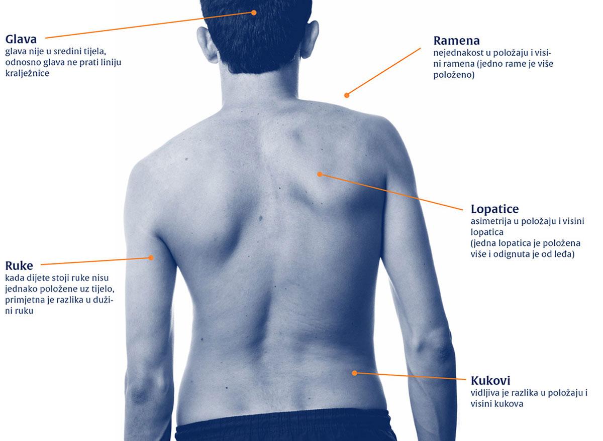 skolioza-dijagnostika