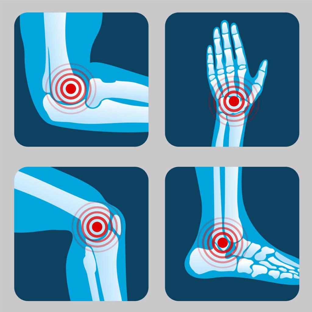 reumatoloski-pregled-